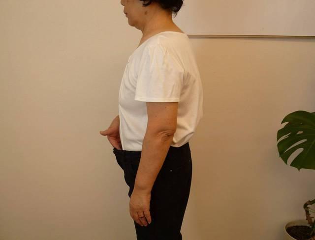 69歳◇脂肪肝の指摘をうけた◇ヒザが痛くウォーキングをやめてしまった
